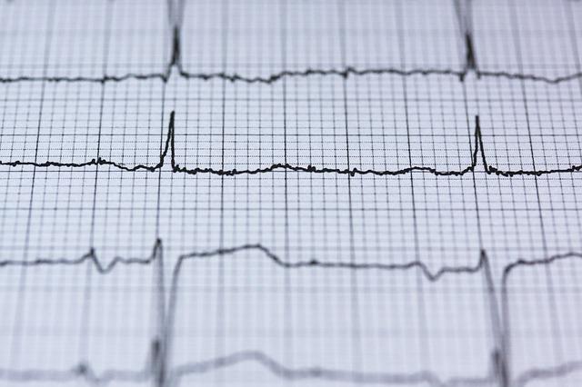 záznam elektrokardiogramu